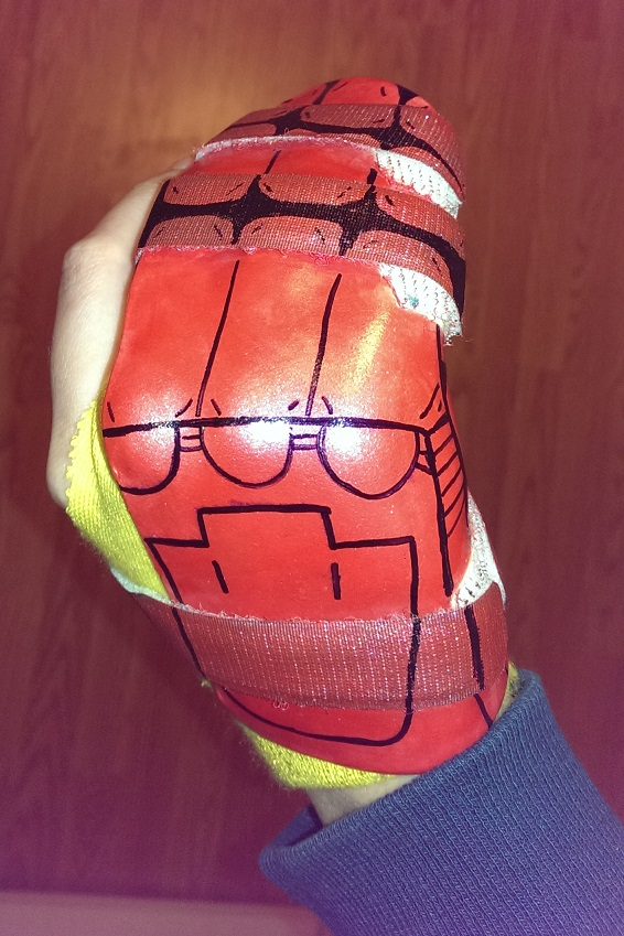 Broken finger 2015: when life hands you lemons, become Iron Man.